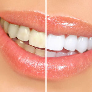 Does Teeth Whitening Really Work? | Glendale, CA