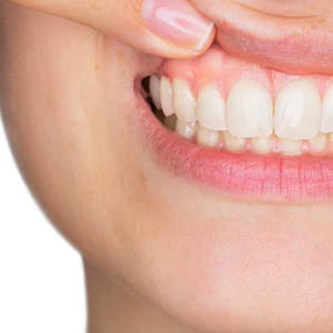 Does your Dentist check for Gum Disease?