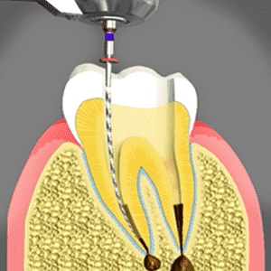 Root Canals treatments in Glendale